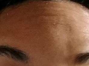 Forehead Lines After Treatment