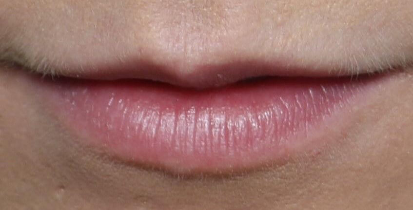 Lip Enhancement Before Treatment