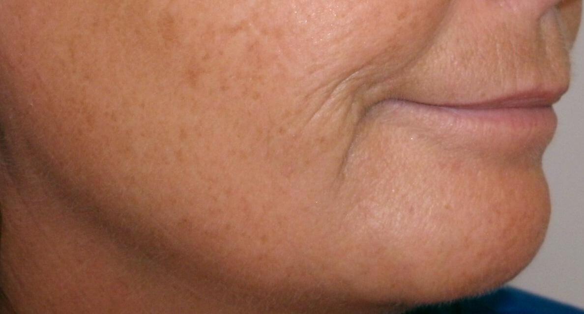 Dermal Filler Restored a Smoother, More Defined Jawline